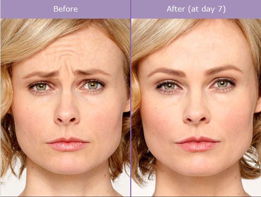 Botox Dysport Before & After Photos SCG Skin Rejuvenation